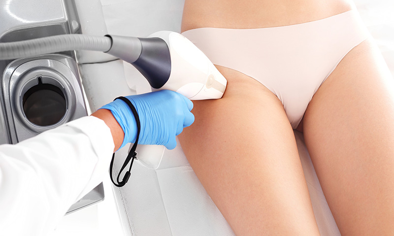 depilacja-laserowa-vectus